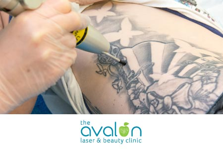 Portfolio Avalon Laser And Beauty Clinic Thumb 01